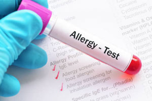 allergy-testing-phoenix-surprise